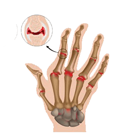 Stem Cell Therapy for Arthritis Disorder