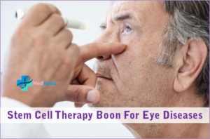 Stem Cell Therapy Boon For Eye Diseases