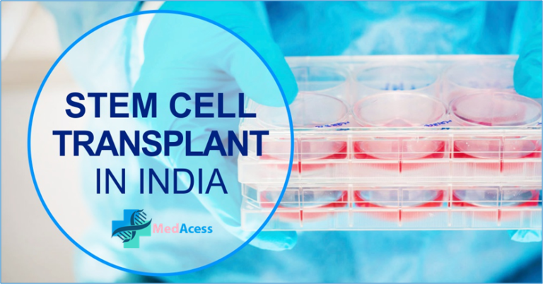 Stem Cell Transplant in India