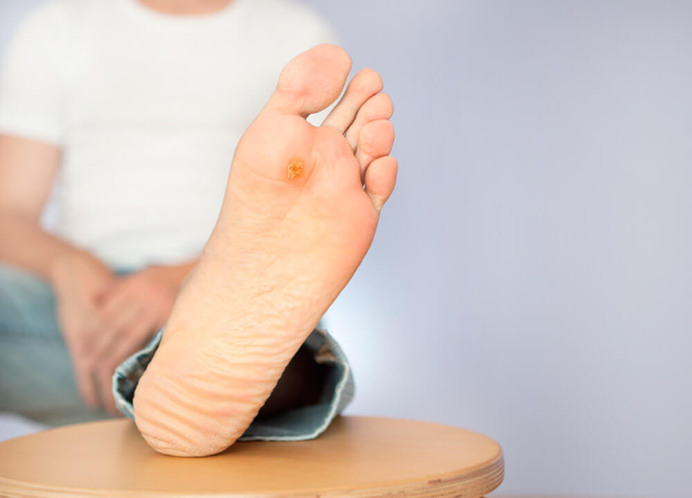 Stem Cell Treatment for Diabetic Foot Ulcers